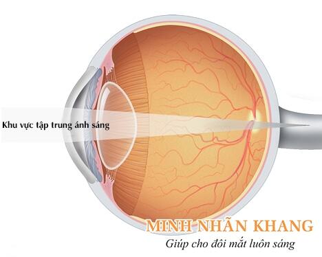 Khi viễn thị, ánh sáng tập trung phía sau võng mạc mắt